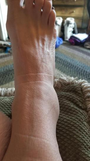 ankle02022019